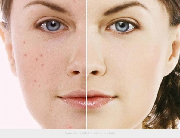 Possible-Reasons-Your-Skin-is-Prone-to-Acne1