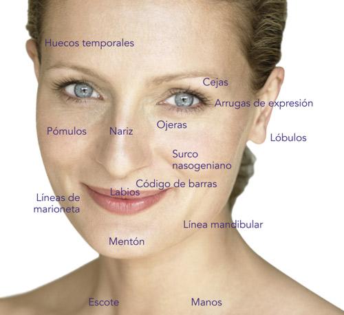 acido-hialuronico-inyecciones-glytone-arrugas