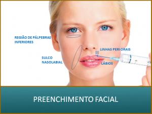 preenchimento8-300x226